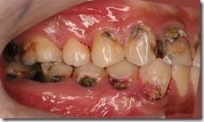 齒頸部的蛀牙填補前