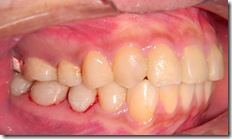 以複合樹脂填補齒頸部的蛀牙