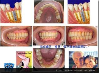 矯正植牙假牙完成術後照片