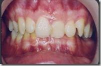 裝戴矯正器前患者就有牙齒齒質比較不平滑堅硬,容易卡牙菌斑的問題