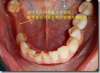 缺牙過久齒槽骨萎縮