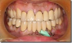 一整排牙橋其中一顆牙齒出現問題