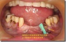 未拔除引起蜂窩組織炎的牙齒必須拆除一整排牙橋。