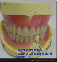活動或全口假牙