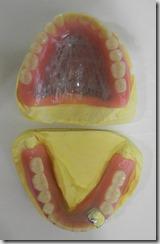 活動或全口假牙的體積很大,基本上需要一定時間的適應。