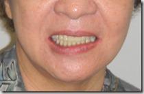 配戴活動假牙的患者。