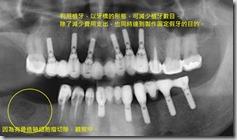 也可利用植牙來做為牙橋的支台齒,除減少植牙數目同時減少費用支出牙橋。