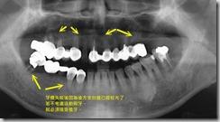 多顆植牙,避免活動假牙。-1