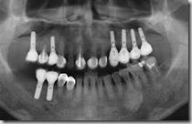 多顆植牙,避免活動假牙。