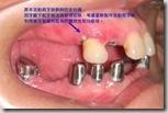 活動假牙的支台齒須拔除會影響假牙的維持性和功能性。