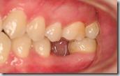 後牙單顆植牙術前