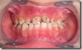 乳牙蛀牙3
