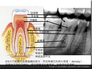 牙齒解剖圖片和X光片的對照示意圖