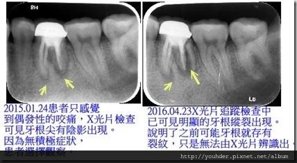 牙根縱裂的前後 X光片追蹤比對。