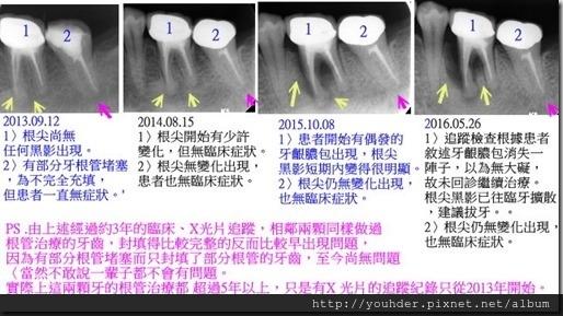 對做過根管治療的相鄰牙做3年追蹤記錄