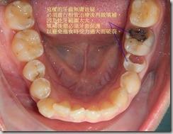 一定必須做根管治療和牙套的牙齒。