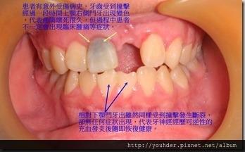牙齒神經壞死後出現變色