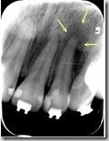 22牙齦處出現膿包。對應X光片。