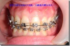 22根管治療完成後8天,牙齦處膿包消失。