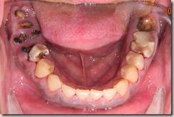 2012.許多牙齒不管是治療過或是沒治療過,因為沒有完整的治療和追蹤維護,已經斷裂變成殘根。