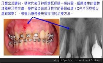 蛀牙太深造成牙神經壞死,牙齦處出現膿包。