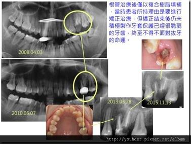 根管後未製作牙套保護,終致面對不得不拔牙的狀況