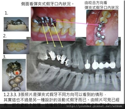由他診所醫師分享案例彈夾式假牙之摘要說明