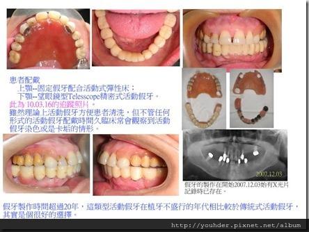 上顎彈性床和下顎望眼鏡型精密式活動假牙之追蹤記錄