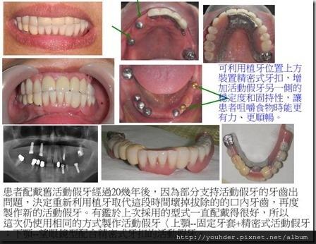 製作新的精密式活動假牙