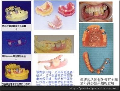 彈性床和傳統活動式假牙的比較
