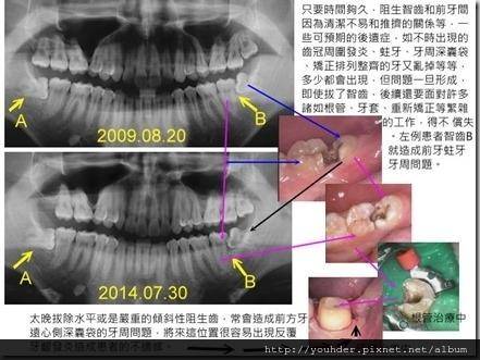 智齒造成前牙蛀牙案例