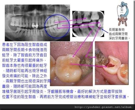 智齒造成前方牙蛀牙和牙周深囊袋