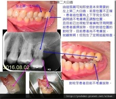 位置不對且已起問題的牙齒即可考慮是否要拔除?