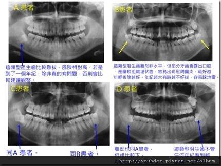 針對須手術拔除智齒的考量2