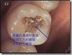 來自蛀牙的根管治療1