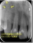 來自於牙周問題產生的膿包--X光片