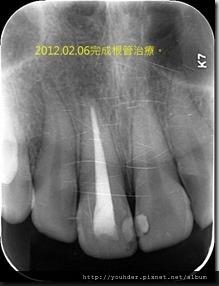 意外撞傷後引起牙髓壞死發展成根尖病變之追蹤-4