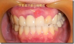 21牙套處牙齦出現膿包。