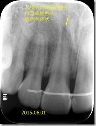 牙齒變色對照X光片2015.06.01