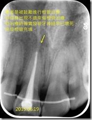 牙齒變色對照X光片2015.06.19
