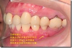 牙齦處有膿包