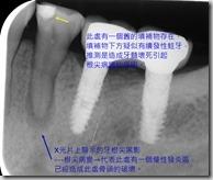 根尖病變X光影像說明