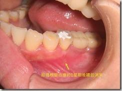 牙齦處有膿包,治療後膿包消失。