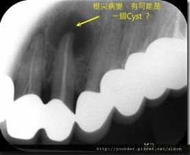 根尖切除手術-術前X光片1