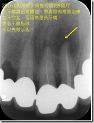 根尖切除手術-術前X光片2