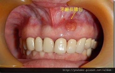 根尖切除手術--術前口內照片