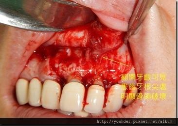 根尖切除手術--術中口內照片1