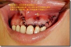 根尖切除手術--術中口內照片6
