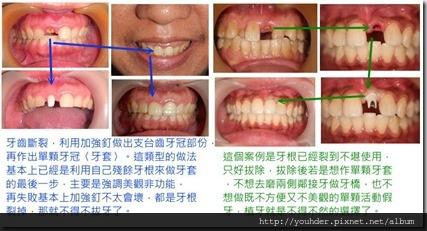 單顆前牙單顆牙套案例