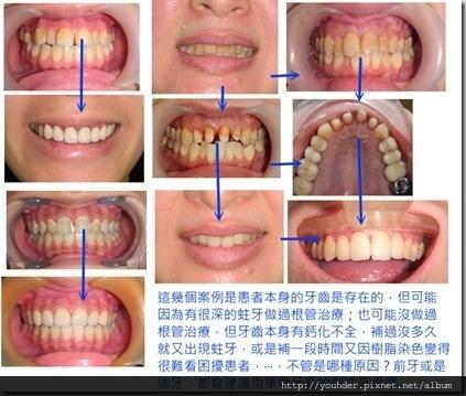 多顆前牙單顆牙套案例